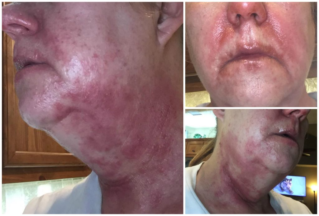 essential oil adverse reaction on face and neck doterra young living